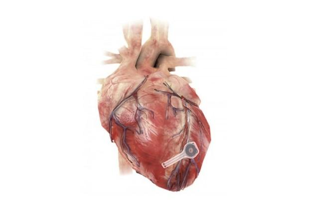 Vědci vyvinuli kardiostimulátor, který po použití lidské tělo přirozeně rozloží